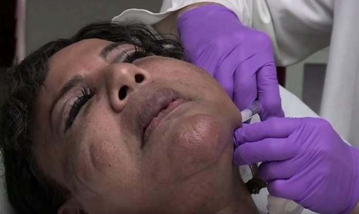 """FOTO & VIDEO / Şi-a injectat faţa, iar la puţin timp chipul i-a devenit un bolovan! Cum arată femeia cu fălci """"de ciment"""""""