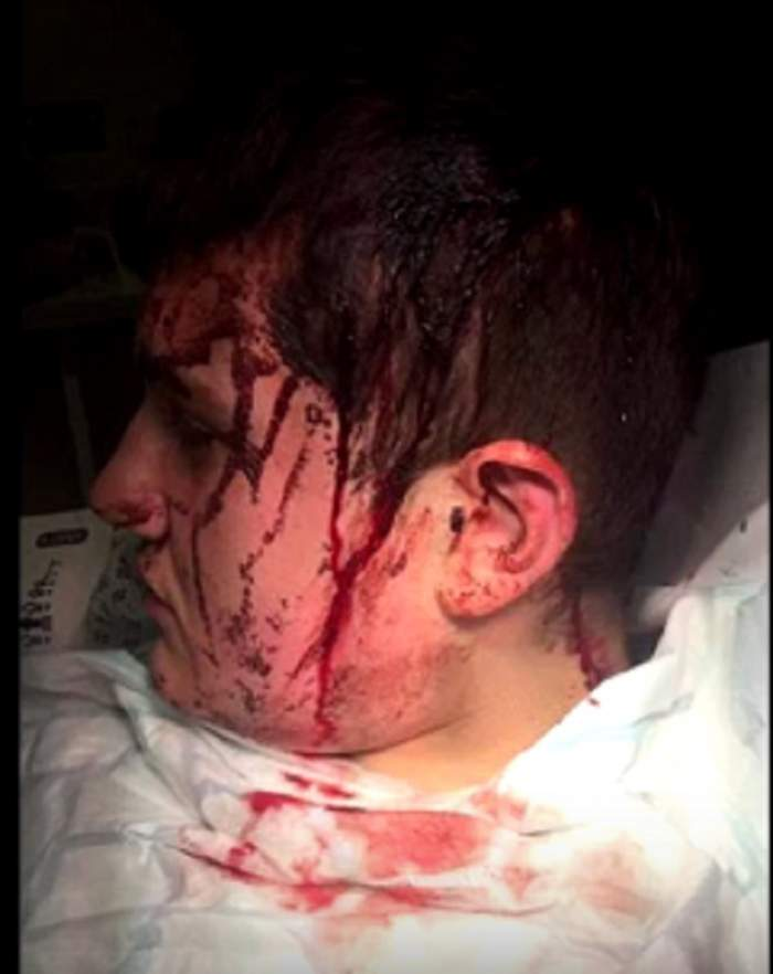 VIDEO / Imagini şocante! Un elev a fost bătut de 8 bărbaţi cu răngi şi ciocane