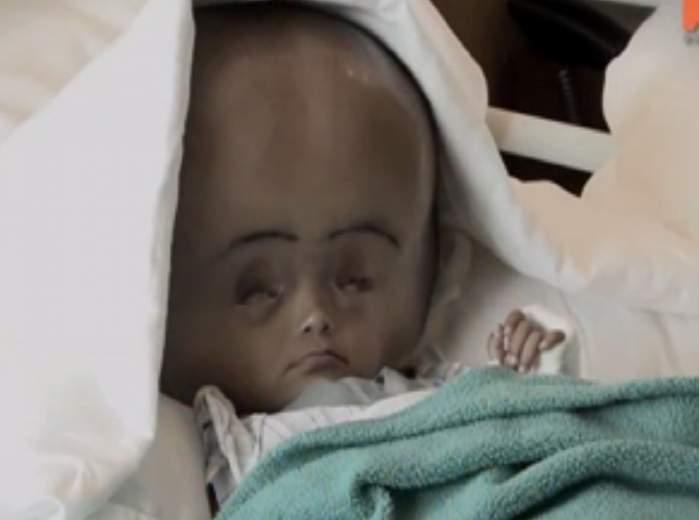 VIDEO / S-a născut cu o boală ciudată, iar medicii au înlemnit atunci când l-au văzut! Adevărul dureros din spatele acestor imagini