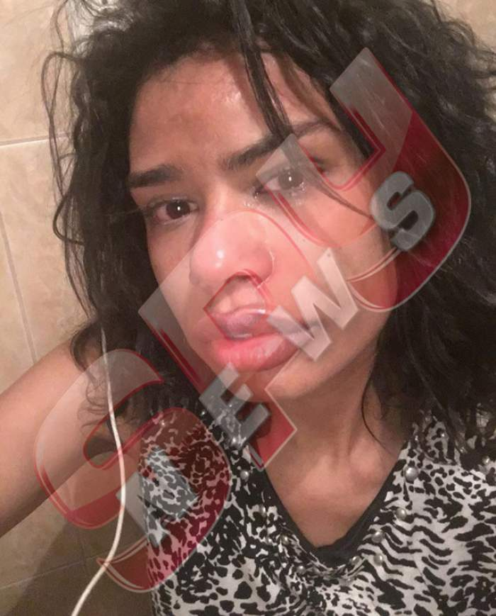 Scandal MONSTRU în showbiz! Un fotomodel celebru, agresat de iubit, a fost umplut de SÂNGE! Imagini HORROR cu rănile vedetei