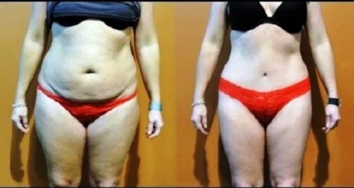 Dieta fulger care dă jos de pe tine 15 kilograme în două săptămâni!