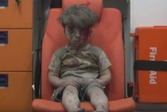 VIDEO / Imaginea care BÂNTUIE internetul! Războiul civil din Siria a făcut un COPIL să arate aşa!