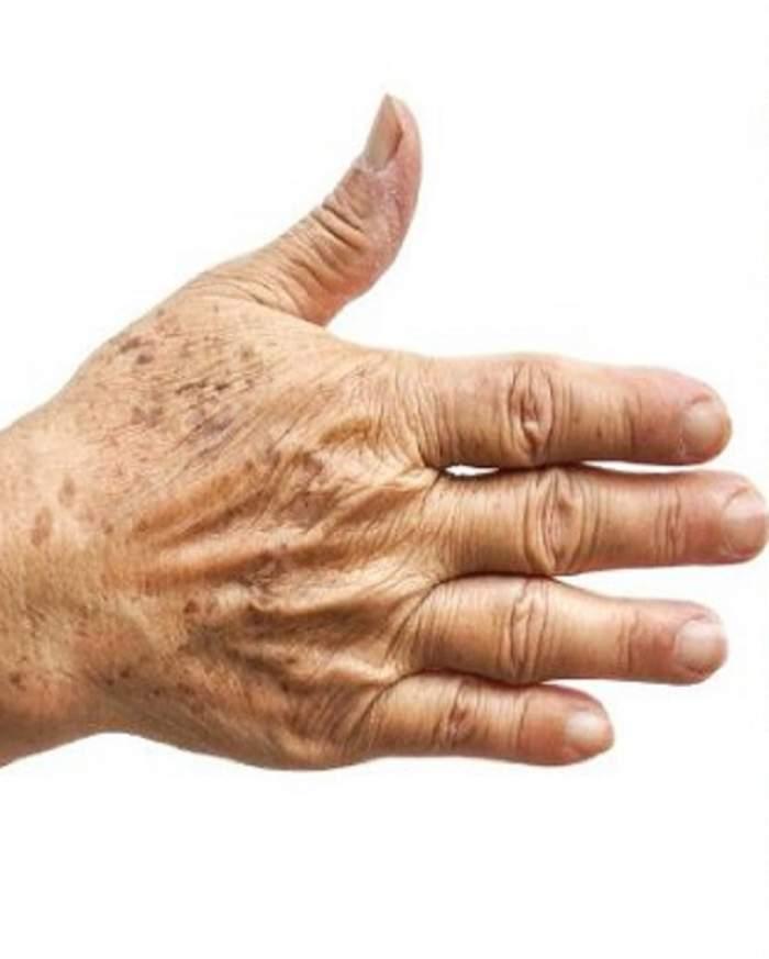 Aplică o soluție preparată acasă și scapă definitiv de petele pigmentare! Peste noapte, pielea ta arată din nou ca în tinerețe