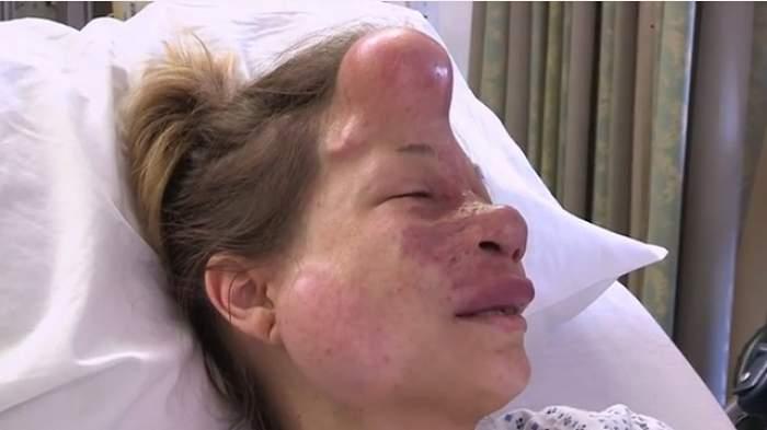 A trăit toată viața cu o malformație, dar medicii au reușit imposibilul! Imaginile șocante cu tânăra care a primit o șansă la o viață normală