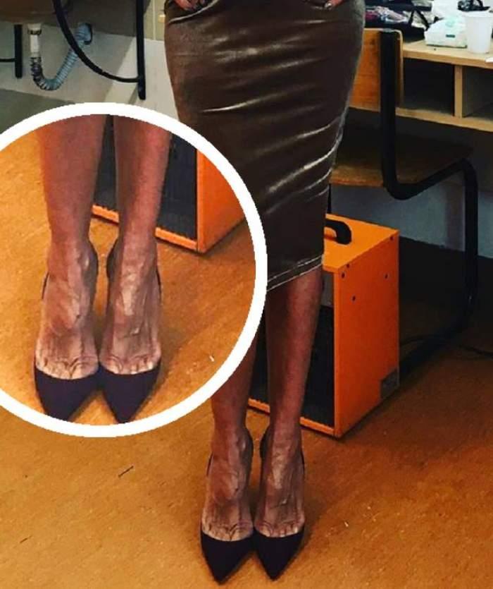 La faţă - PĂPUŞĂ, la picioare - MĂTUŞĂ! O DIVĂ a vrut să se laude cu pantofii, dar picioarele chinuite i-au şocat pe prieteni