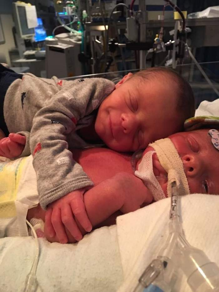 """Imaginile astea îţi vor frânge sufletul! Un nou-născut îşi ia """"rămas-bun"""" de la geamănul aflat pe moarte"""