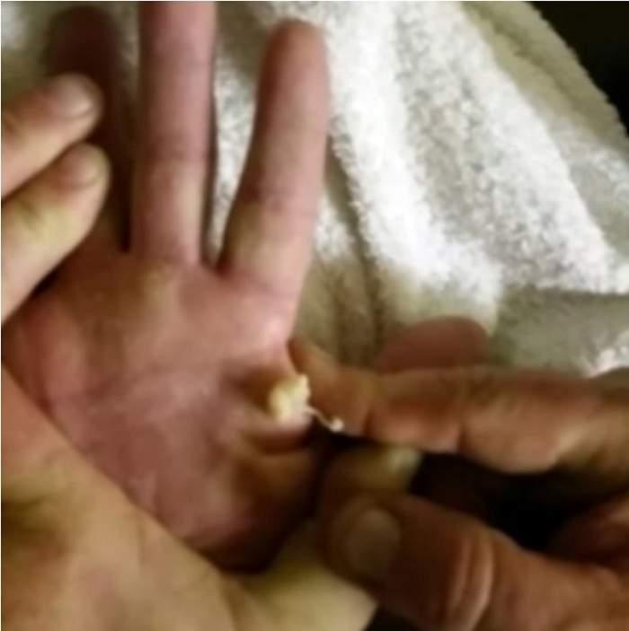 VIDEO / S-a filmat în timp ce-şi storcea chistul IMENS de pe mână! D-abia poţi privi clipul până la capăt