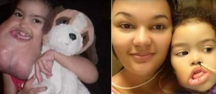 VIDEO / Avea o tumoare imensă pe faţă! După o operaţie complicată, fetiţa arată total diferit
