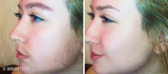 Amestecul care te scapă de părul facial nedorit! Este o metodă simplă și nedureroasă pe care o poți face acasă
