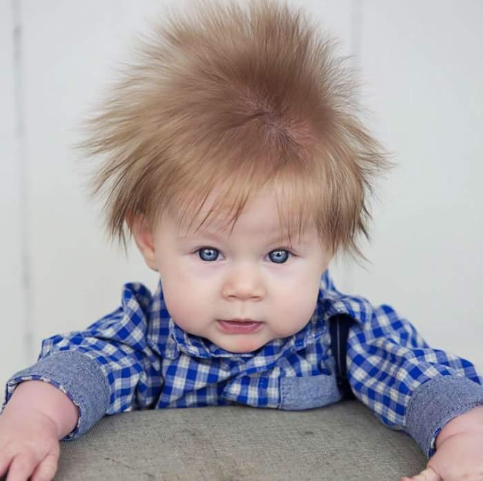 """FOTO / Rar au mai văzut aşa ceva la ecograf! Un bebeluş i-a impresionat pe medici cu podoaba lui capilară: """"Arată de parcă e electrocutat!"""""""