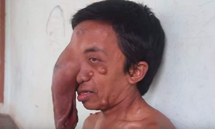 VIDEO / Un bărbat cu o tumoră imensă pe față strigă disperat după ajutor!