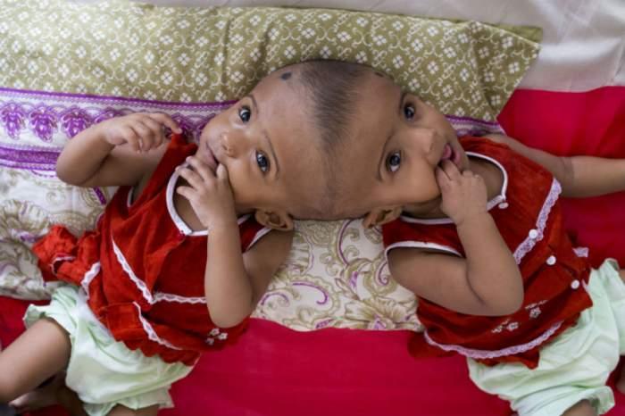 VIDEO / S-au născut siameze şi au primit o şansă la o viaţă normală! E halucinant ce au spus medicii când fetiţele erau nenăscute