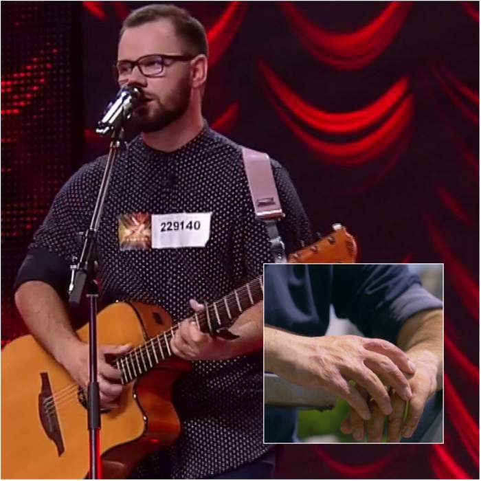 """VIDEO / Din dezastrul Colectiv, pe scena """"X Factor""""! Concurentul pentru care viaţa a căpătat alt sens: """"Mi-au au ars ambele maini"""""""