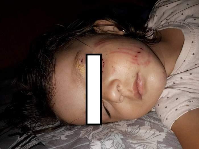 FOTO / O fetiță de 2 ani a fost mușcată de un câine în parc. E cutremurător cum s-a întâmplat