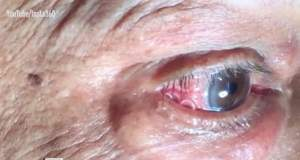 Ascundea o creatură în ochi! Medicii au fost şocaţi când au văzut ce scot de sub pleoapa unui bărbat