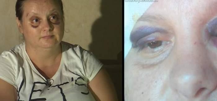 """VIDEO / Bătută cu bestialitate de soţ, cu fetiţa de un an în braţe: """"Îmi curgea sânge din cap"""""""