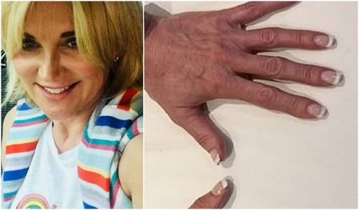 Noua fiță în materie de tratamente de înfrumusețare! O prezentatoare tv a încercat injecțiile pentru palme