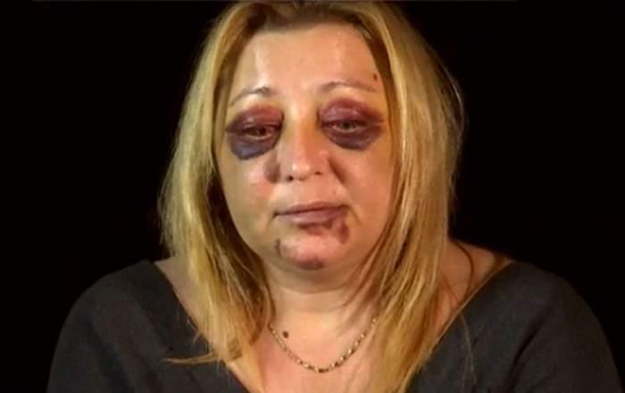 """VIDEO / Violată şi desfigurată de fostul iubit. Drama femeii căreia îi este frică să mai iasă din casă. """"Încearcă să mă omoare"""""""