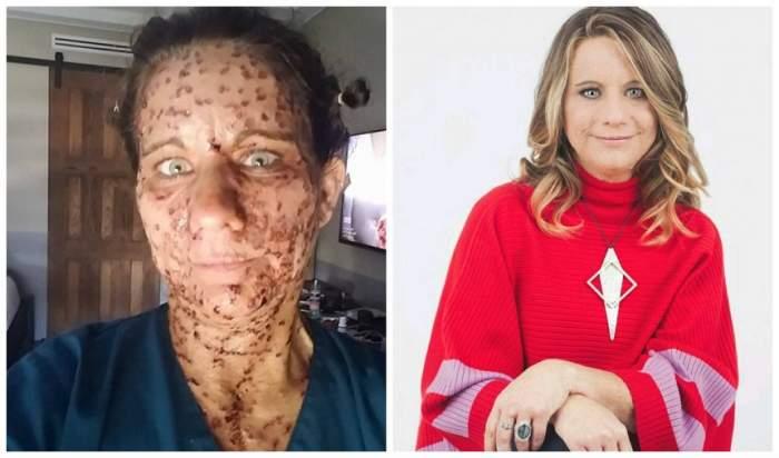 FOTO / S-a operat și a renăscut! Cum arată acum femeia cu 6000 de tumori pe corp