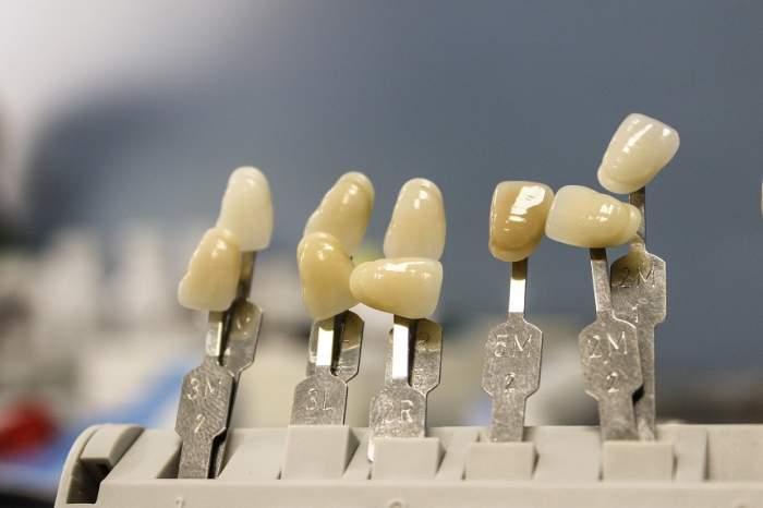 Cum alegi culoarea fațetelor dentare?