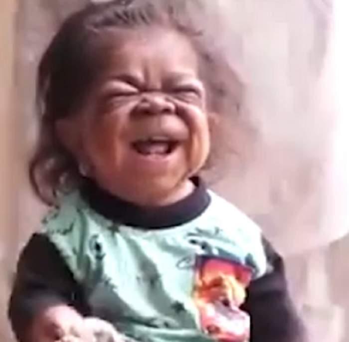 VIDEO / Are 23 de ani, dar arată ca un bebeluș! Imagini cutremurătoare cu bărbatul prins într-un corp de copil
