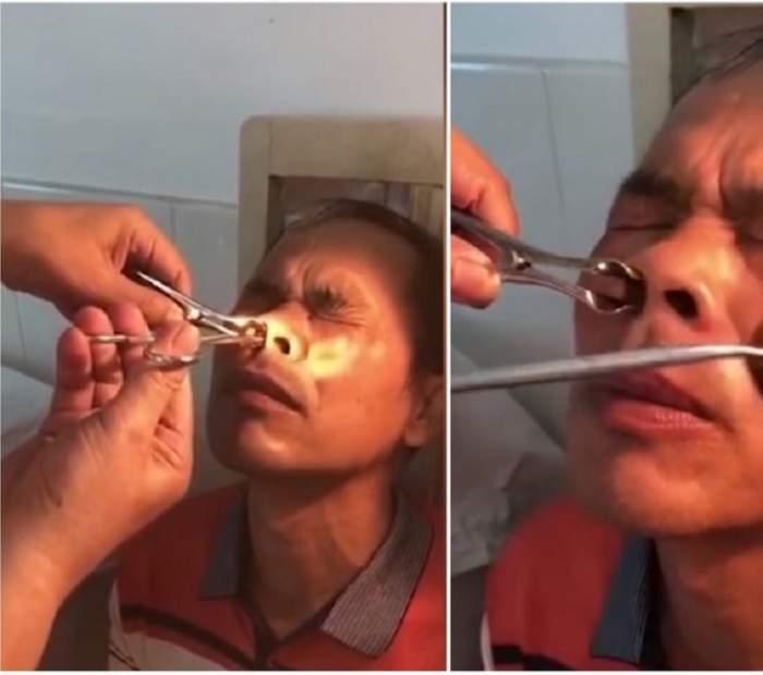 VIDEO /  A avut sângerări nazale timp de 10 zile şi a mers la medic! Bărbatul a rămas şocat când a văzut ce poate să iasă din nara sa