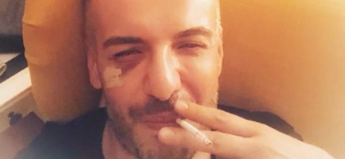 """FOTO / Răzvan Ciobanu, snopit de partenerul său: """"A pus mâna pe un scaun și l-a lovit cu bestialitate"""""""