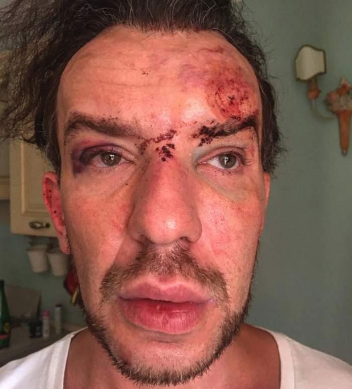 """Stephan Pelger, operat de urgenţă după ce a fost bătut la Cannes: """"Le voi acţiona în judecată. Vor fi trei procese"""""""