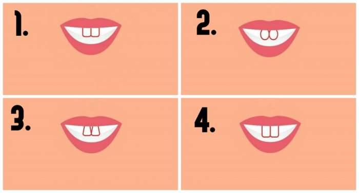 TEST: Forma dinților spune multe despre cine ești! Află lucruri neștiute despre tine, cu o simplă privire în oglindă