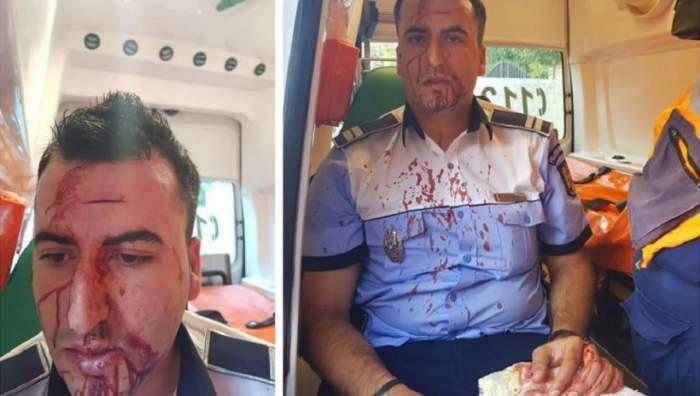 FOTO / Un polițist din Craiova a fost băgat în spital de un șofer