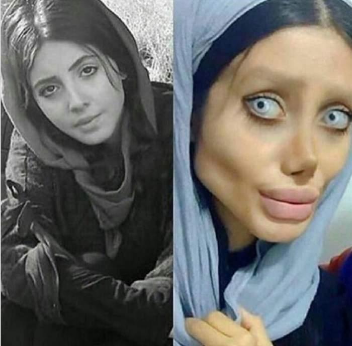Cum arăta înainte tânăra care s-a mutilat încercând să semene cu Angelina Jolie / GALERIE FOTO