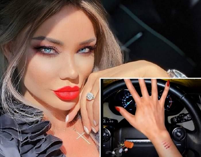 Primele imagini cu Bianca Drăguşanu după ce a divorţat! Şi-a pozat mâna rănită şi a vorbit despre violenţă / FOTO