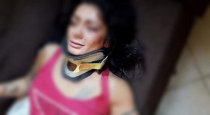 FOTO / Româncă bătută cu bestialitate în Italia! Alexandra este dansatoare şi a fost lovită fără milă de mai mulţi bărbaţi