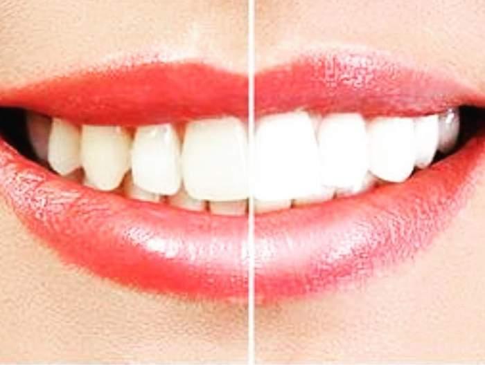 Albirea dinţilor este mai simplă ca niciodată! Foloseşte ingredient naturale pe care le ai acasă