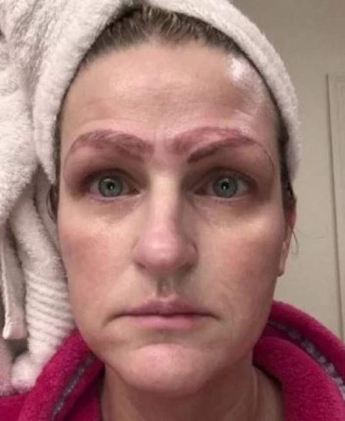O femeie a fost părăsită de iubit, după ce un tratament eșuat a lăsat-o cu patru sprâncene