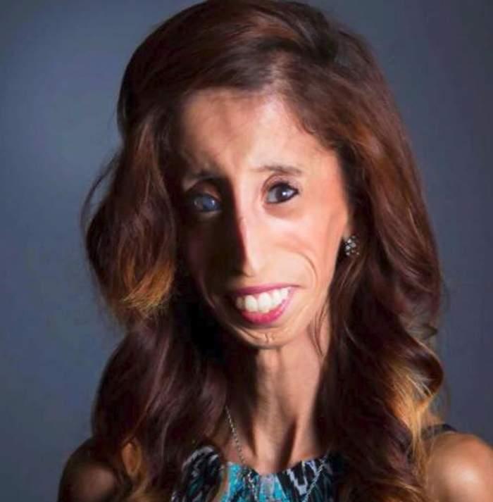 Cum arată în prezent Lizzie Velasquez, considerată cea mai urâtă femeie din lume