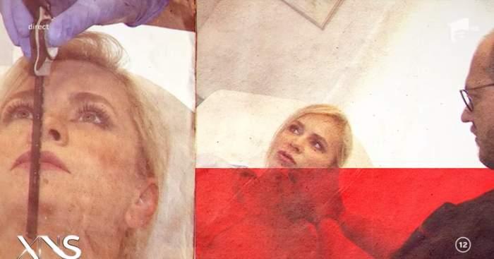 Paula Chirilă, operație estetică ciudată, la nivelul bărbiei. Prima apariție după intervenție