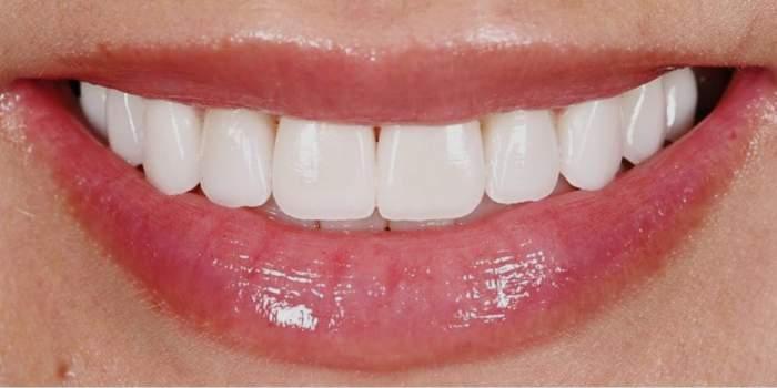 Albirea dinților acasă. Tratamente naturale pentru un zâmbet frumos