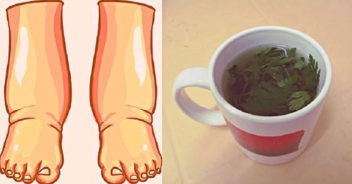 imagine ilustrativă picioare umflate
