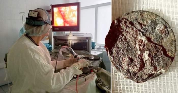 Un bărbat a fost operat de urgență, pe motiv că nu mai putea respira. Ce au descoperit medicii în nasul acestuia