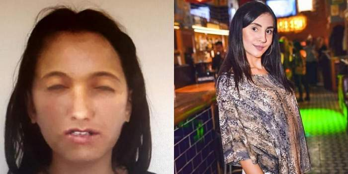 Dezvăluiri noi în cazul fetei arse din Giurgiu! ADN-ul său nu corespunde cu cel al tinerei dispărute din Capitală!