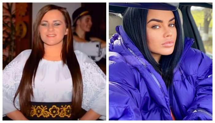 Carmen de la Sălciua, înainte și după operațiile estetice