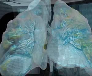 Cum sunt afectați plămânii unui pacient infectat cu noul coronavirus, dar care nu are simptome / VIDEO