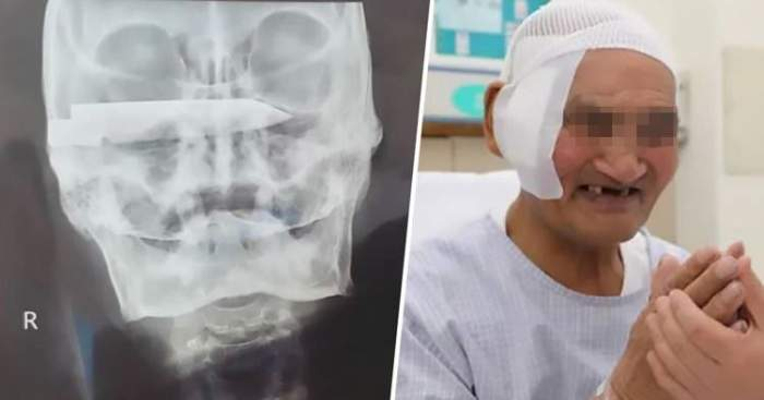 Un real miracol! Bărbat operat pentru a i se scoate o lamă ruginită din cap, la 26 de ani după ce a fost înjunghiat