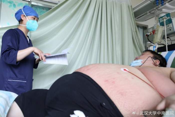 Bărbatul care s-a îngrășat 100 kg în carantină! Cum a ajuns să arate cel care i-a uluit pe medici / FOTO