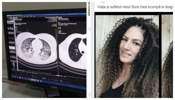 De ce a murit femeia de 39 de ani din Alba-Iulia, deși nu avea nici o boală! Cum arătau plămânii tinerei ucise de coronavirus / FOTO