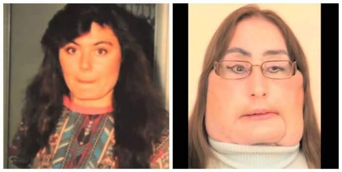 A murit femeia care a suferit primul transplant de față din SUA! Care a fost cauza decesului la doar 57 de ani