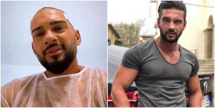 Dorian Popa, transplant de păr!