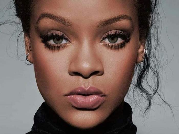 Rihanna, cu vânătăi și zgârieturi pe față