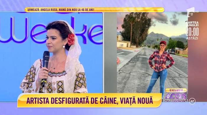 """Acces Direct. Cum s-a schimbat viața Mariei Beatrice Bădănoiu, artista de muzică populară desfigurată de un câine: """"A fost nedrept"""" / VIDEO"""